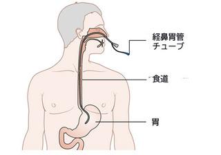 cyohesoku.jpg