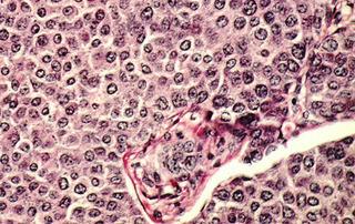 癌細胞の姿