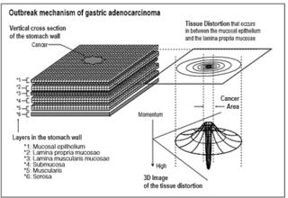 胃癌発癌理論 要約