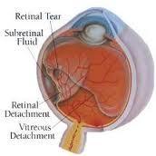 retinaldetach.jpg